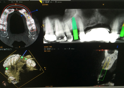 CBCT Implant Image